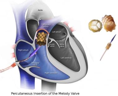 Tetralogy of Fallot (TOF) in Adults Treatment & Management ... on nephrotic syndrome pathophysiology, retinopathy of prematurity pathophysiology, typhoid fever pathophysiology, chronic obstructive pulmonary disease pathophysiology, cardiac tamponade pathophysiology, mitral valve stenosis pathophysiology, cushing's syndrome pathophysiology, sarcoidosis pathophysiology, bronchiolitis pathophysiology, mitral valve regurgitation pathophysiology, atrial flutter pathophysiology, ankylosing spondylitis pathophysiology, unstable angina pathophysiology, aspiration pneumonia pathophysiology, cardiogenic shock pathophysiology, umbilical hernia pathophysiology, pleural effusion pathophysiology, meningitis pathophysiology, aortic stenosis pathophysiology, alzheimer's disease pathophysiology,