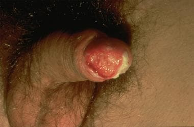 Squamous cell carcinoma (Image courtesy of Hon Pak
