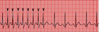 ECG strip shows a atrial fibrillation terminated b
