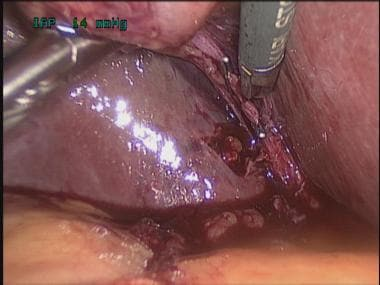 Transvaginal cholecystectomy. Division of cystic a