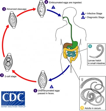 Life cycle of whipworm. The unembryonated eggs are