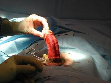 Intraoperative picture of an artificial erection d