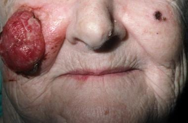 A large lesion of the right cheek amenable to repa