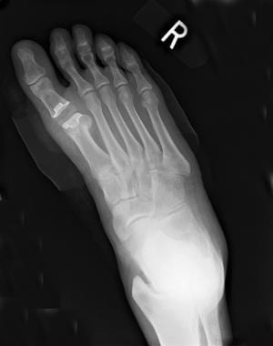 Postoperative radiograph obtained after resectiona