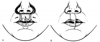 A and B. Central upper lip defect reconstruction w