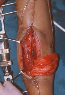 Clinical Case 1. Intraoperative picture. The osteo