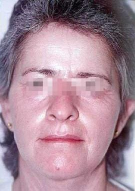 Six months after procedure. Female patient with sk
