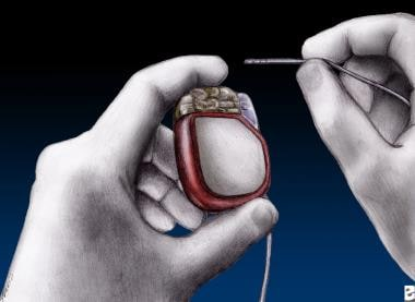 Example of implantable neurostimulator for deep br