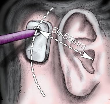 Bone-anchored hearing systems. Template for determ