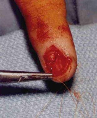 Suturing of a nailbed laceration.