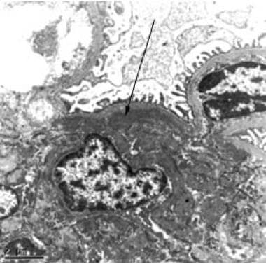 Electron photomicrograph showing mesangial electro