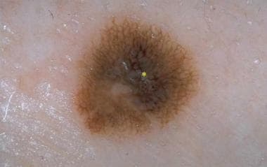 Dysplastic nevus with irregular pigment network an