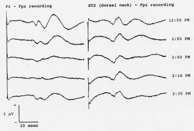 Serial somatosensory evoked potentials (SEPs) reco