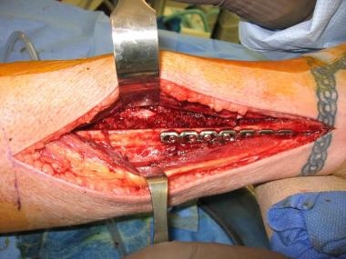 The central aspect of the leg was filled with bone