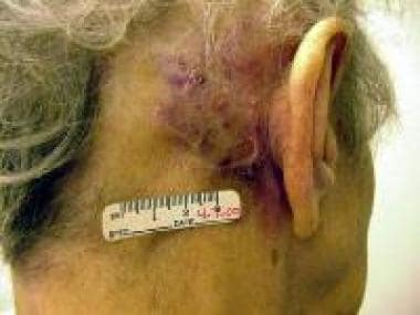 Cutaneous angiosarcomas primarily affect elderly p