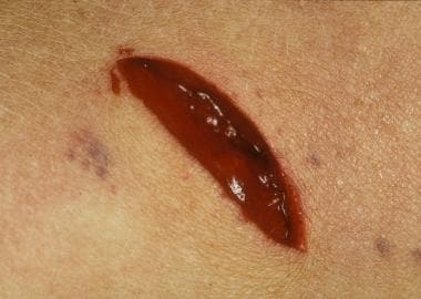 An example of a gaping stab wound with associated