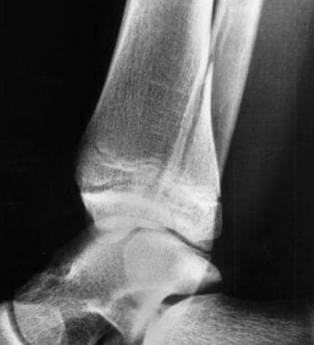 Lateral radiograph from a 13-year-old girl with tr