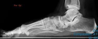 Pes Planus (Flatfoot) Treatment & Management: Approach
