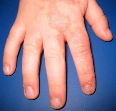 A young boy with a linear lesion of porokeratotic