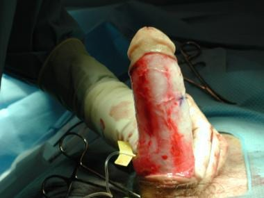 Intraoperative picture after penile plication demo