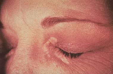 Xanthelasma. Courtesy of Duke University Medical C