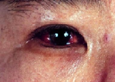 Ocular involvement showing posterior uveitis.