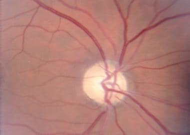 Atrophic right optic disc of a 37-year-old man wit