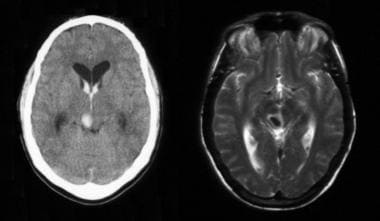 This CT scan and MRI revealed midbrain intracerebr