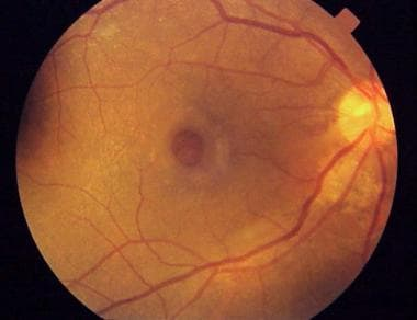 Full-thickness macular hole showing a surrounding