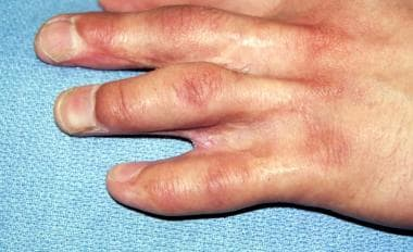 Hand of 23-year-old patient who underwent releases