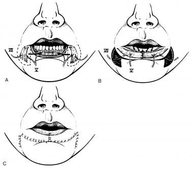 Bilateral depressor anguli oris total lower lip re