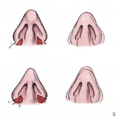 Basic closed technique for rhinoplasty. Nasal base