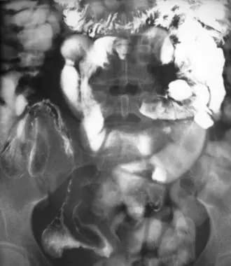Crohn disease of terminal ileum. Small bowel follo