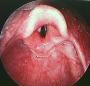 Postoperative view of the glottic larynx in a chil