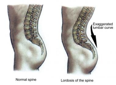 Lumbar lordosis of pregnancy.