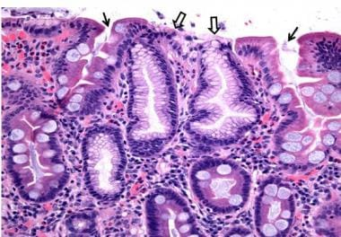 Intestinal metaplasia in gastric antral mucosa. Th