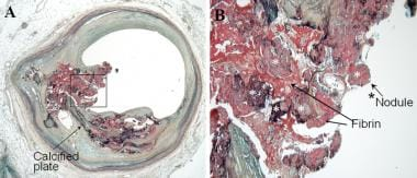 Vulnerable plaque pathology. Calcified nodule. A: