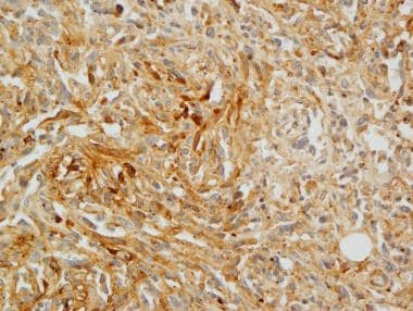 Serosal angiosarcoma. Focal expression of the endo