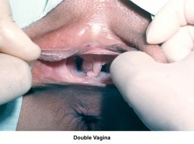 Infertility. Double vagina. Image courtesy of Jair