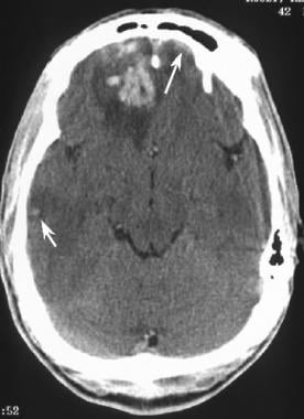 Acute brain contusion. Axial CT scan obtained in a