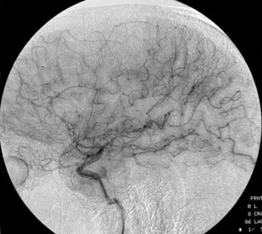 Lateral carotid angiograph of a low-grade oligoden