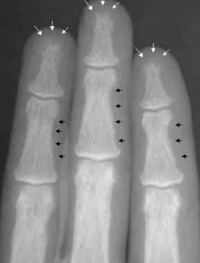 Radiograph of the middle phalanges in a patient wi