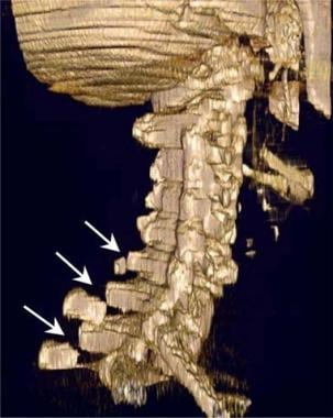 Thoracic spine trauma. Three-dimensional surface C