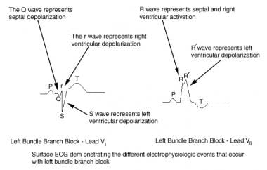 ECG depicts electrophysiologic events of left bund