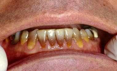 Tetracycline staining of mandibular teeth caused b