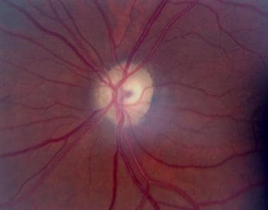Atrophic left optic disc of a 37-year-old patient