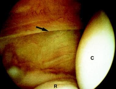 Type 2 lateral epicondylitis showing a linear tear