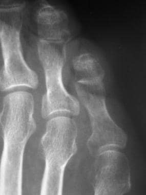 Fifth-toe deformities. This radiograph shows promi