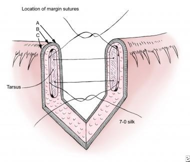 Direct layered closure of a lid margin defect, sho
