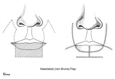 von Bruns nasolabial flap technique.